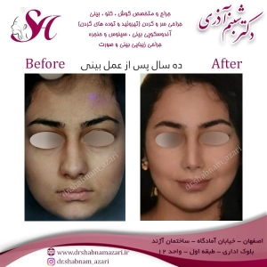 جراحی بینی اصفهان 1