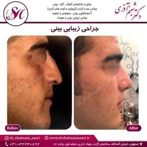 جراحی بینی اصفهان 10