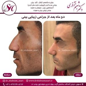 جراحی بینی اصفهان 11