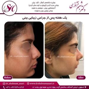 جراحی بینی اصفهان 12