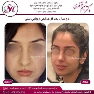 جراحی بینی اصفهان 13