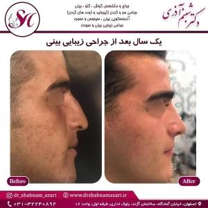 جراحی بینی اصفهان 15