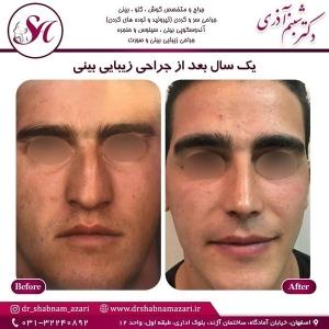 جراحی بینی اصفهان 16