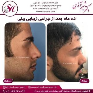 جراحی بینی اصفهان 19