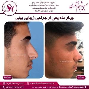 جراحی بینی اصفهان 21