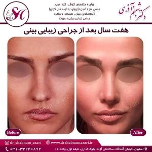 جراحی بینی اصفهان 22