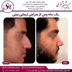 جراحی بینی اصفهان 23