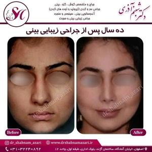 جراحی بینی اصفهان 25