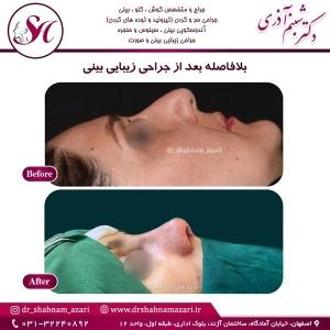 جراحی بینی اصفهان 27