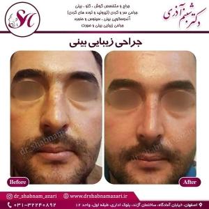 جراحی بینی اصفهان 28