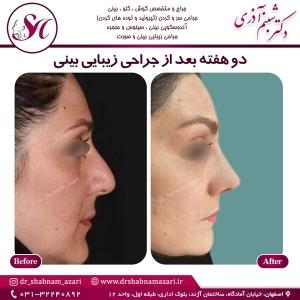 جراحی بینی اصفهان 29