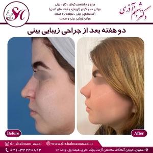 جراحی بینی اصفهان 30