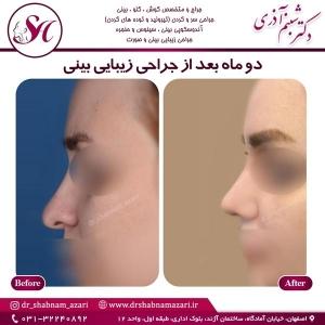 جراحی بینی اصفهان 31