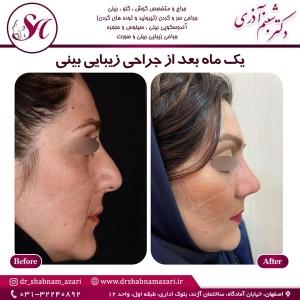 جراحی بینی اصفهان 32