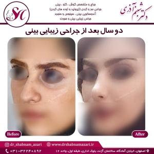 جراحی بینی اصفهان 33