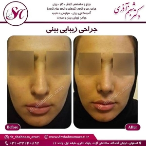 جراحی بینی اصفهان 34