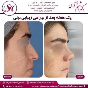 جراحی بینی اصفهان 35