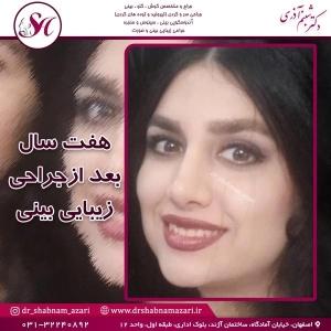 جراحی بینی اصفهان 36