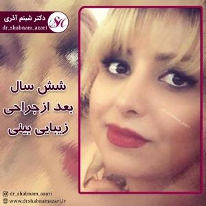 جراحی بینی اصفهان 37