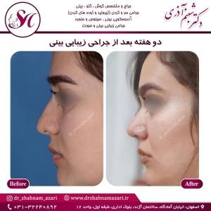 جراحی بینی اصفهان 39