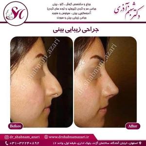 جراحی بینی اصفهان 41