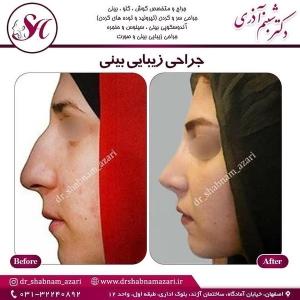 جراحی بینی اصفهان 42