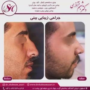جراحی بینی اصفهان 43