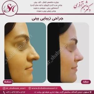 جراحی بینی اصفهان 44