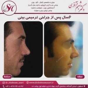 جراحی بینی اصفهان 45