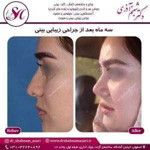 جراحی بینی اصفهان 46