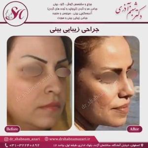 جراحی بینی اصفهان 47