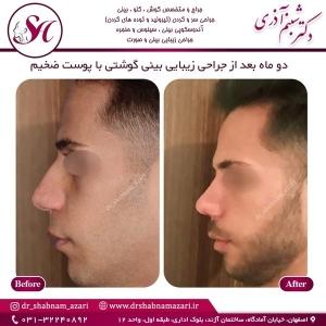 جراحی بینی اصفهان 48