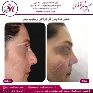 جراحی بینی اصفهان 49