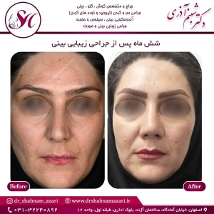 جراحی بینی اصفهان 50