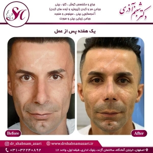 جراحی بینی اصفهان 51