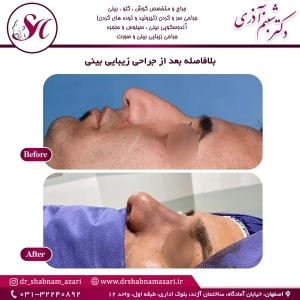 جراحی بینی اصفهان 52