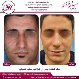 جراحی بینی اصفهان 53