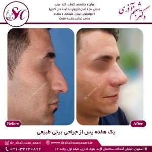 جراحی بینی اصفهان 54