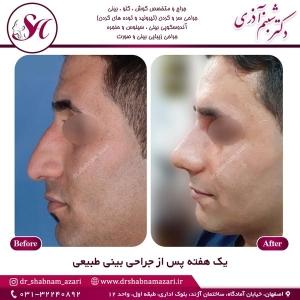 جراحی بینی اصفهان 55
