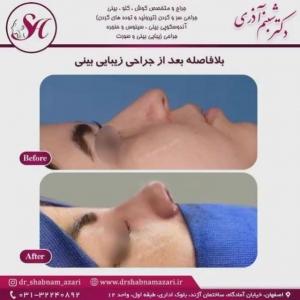 جراحی بینی اصفهان 56