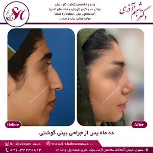 جراحی بینی اصفهان 57