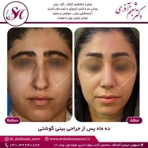 جراحی بینی اصفهان 58