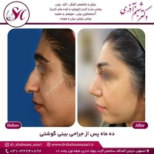 جراحی بینی اصفهان 59