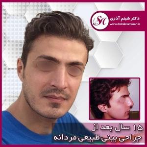جراحی بینی اصفهان 61