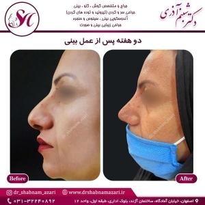 جراحی بینی اصفهان 62