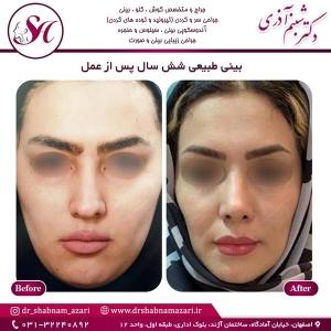 جراحی بینی اصفهان 63