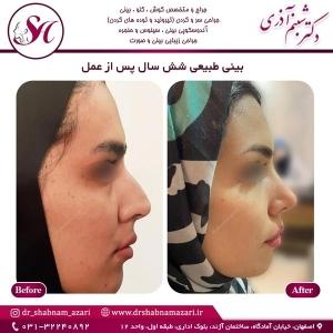 جراحی بینی اصفهان 64