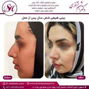 جراحی بینی اصفهان 65