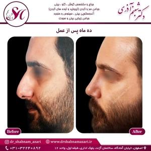 جراحی بینی اصفهان 67