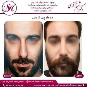 جراحی بینی اصفهان 68